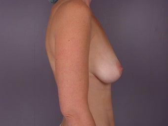 Breast Lift / Breast Augmentation before 291131