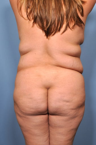 Liposuction before 521677