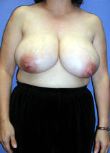 Breast Reduction Surgery (No Implants) before 124958