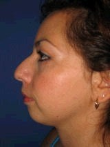 Chin Implants before 357642