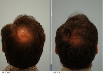 Crown (vertex) Hair Restoration before 396052