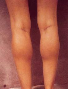 Women's Calf Augmentation after 519045