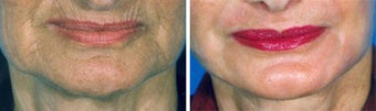 Chemical Peel before 652170
