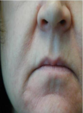 Juvederm before 142237