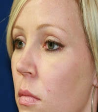 blepharoplasty (eyelids) before 219342
