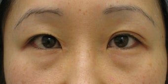 Upper and lower blepharoplasty by CO2 laser before 259539