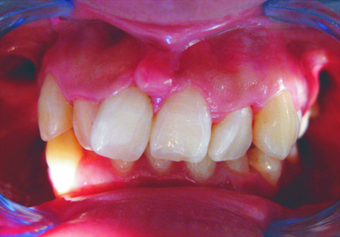 Complex orthodontics with Invisalign before 293389