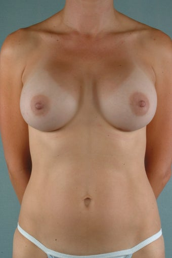 Breast Augmentation  after 240407