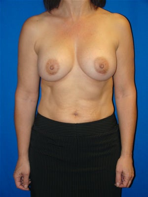 Breast Augmentation Surgery after 159603