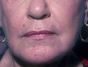 Chemical Peel after 68830
