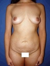 Breast Augmentation, Petite Frame Breast Augmentation, Tummy Tuck (Abdominoplasty) before 467906