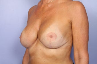 Breast Revision Surgery  after 306998