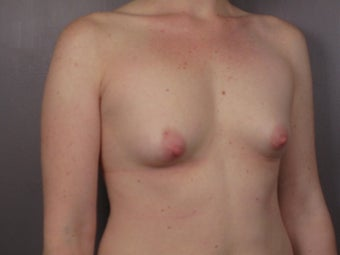 Breast Lift / Breast Augmentation  before 291065