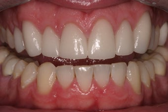 porcelain crowns after 330389