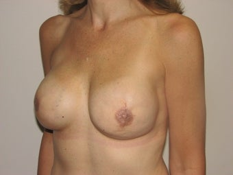 Breast reconstruction after mastectomy (after photos only) before 162800