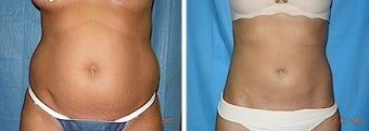 Liposuction tummy before 245239