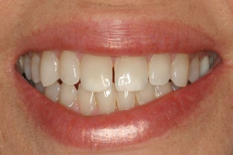 KOR Whitening before 370142