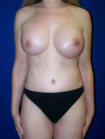 Breast Augmentation Revision before 79499
