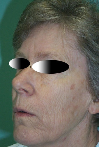 Full face laser resurfacing before 286172