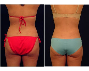 Liposuction before 286653