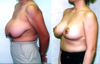 breast reduction  after 302684