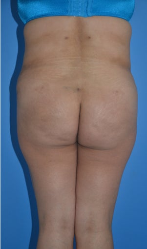Liposuction and Abdominoplasty after 555508