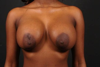 Areola reduction before 567572