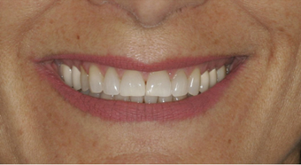 Smile makeover before 478964