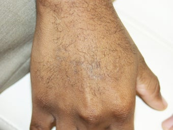 Tattoo Removal African American Skin after 139071