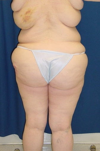 Post bariatric surgery lower body lift before 100665