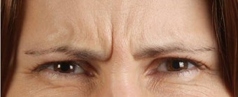 Botox Results before 271679