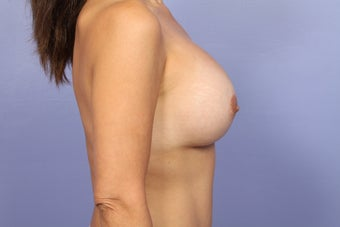 Breast Augmentation- Mommy Makeover after 466153