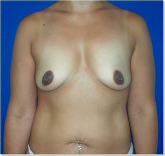 Breast Augmentation before 250345