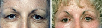 Blepharoplasty before 643243