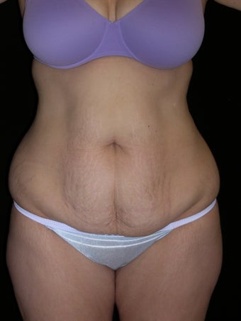 Tummy tuck before 275256