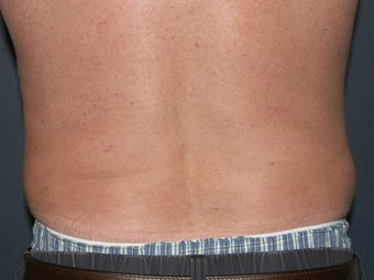 Body Liposculture after 486600
