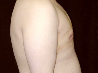 Gynecomastia Reduction Surgery after 238729