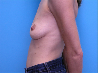 Breast Reconstruction 310525