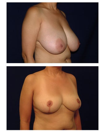 Breast Reduction before 286987