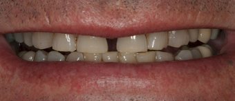 Full mouth dental reconstruction before 90862