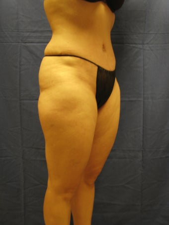 Tummy Tuck and Liposuction Waist after 364835