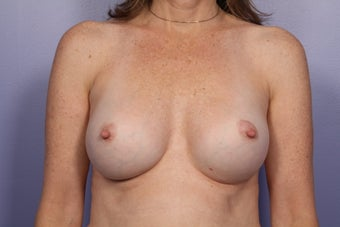 Breast Implants  after 305405