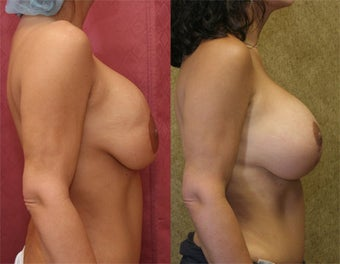 breast implant revision after 302667