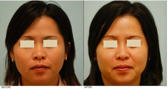 Dallas Asian Rhinoplasty before 136821