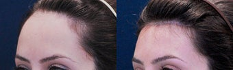 Forehead Reduction Surgery or Hairline Lowering Surgery before 323759