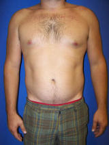 Pec Implants before 130081