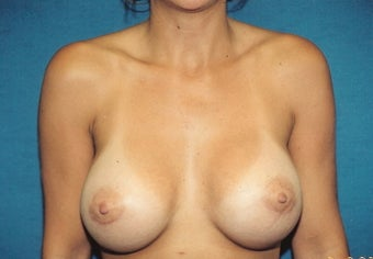 Breast Augmentation after 260762