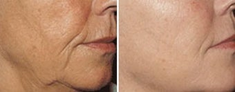 Sculptra for wrinkles around the mouth before 6551