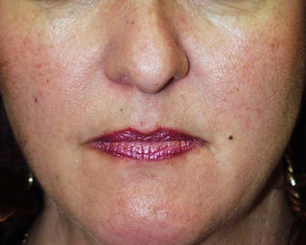 Lip Augmentation: fat injections to lips before 118281