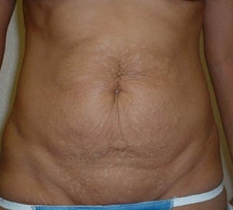 Tummy Tuck before 137947